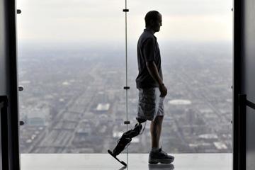 Bioniczna proteza nogi